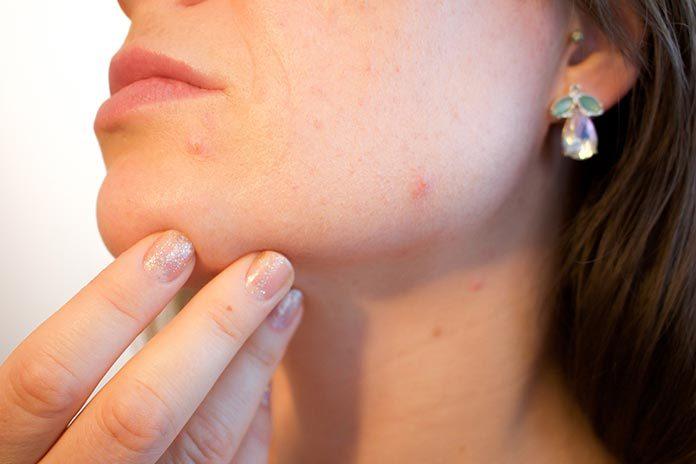 Leczenie trądziku – jak prawidłowo pielęgnować cerę?
