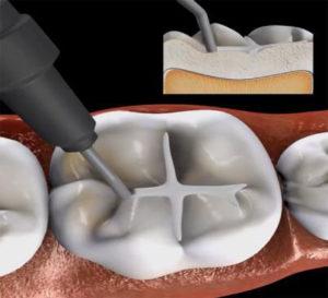 Jak leczyć próchnicę zębów?