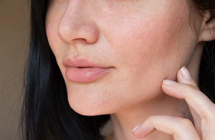 Jak walczyć z niedoskonałościami skóry twarzy